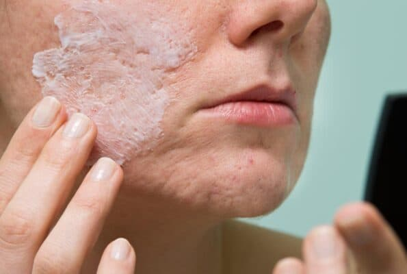 salicylic acid acne treatment