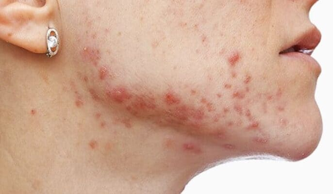 treat fungal acne
